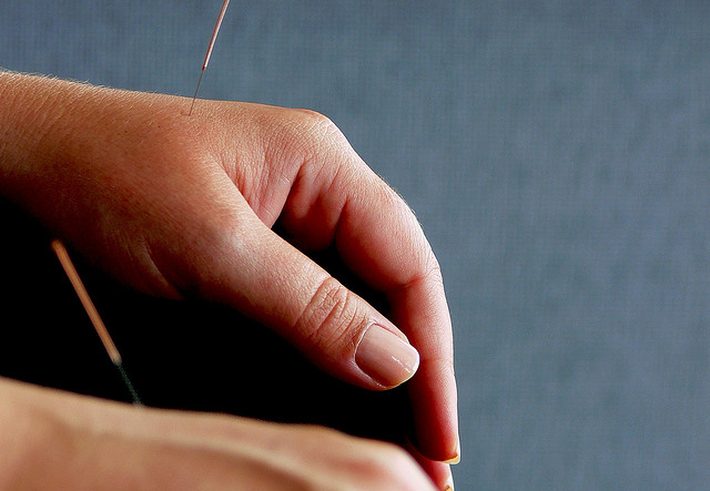 hand with accupuncture needles
