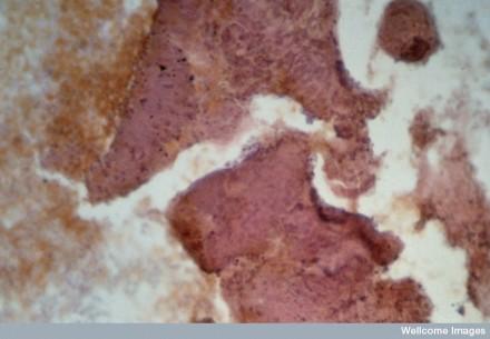 N0016566 Lung cancer; metastasis to arm bone (humerus)