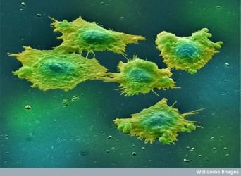 B0006254 Human colon cancer cells