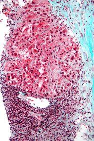 https://en.wikipedia.org/wiki/Hepatocellular_carcinoma#/media/File:Hepatocellular_carcinoma_intermed_mag.jpg
