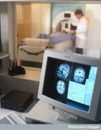 C0000757FG07 MRI scanning