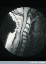 N0014037 MRI scan; spinal cord cancer (glioma), cervical
