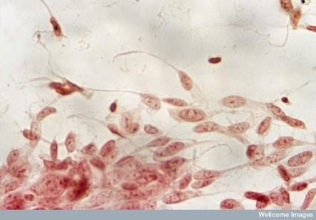 N0022091 Malignant melanoma; metastases inner canthus eye