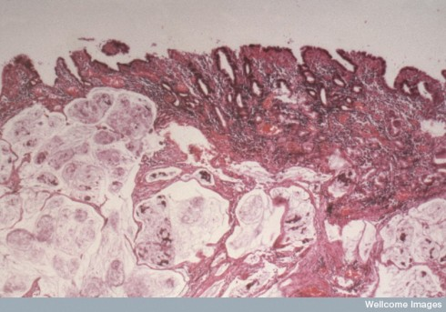 N0007047 Cancer of stomach; photomicrograph
