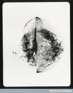 B0010863 Healthy breast mammogram, artwork