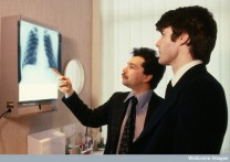AS0000184F07 Hospital doctors looking at X-ray of lungs