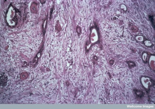 N0009298 Cancer of the pancreas; photomicrograph