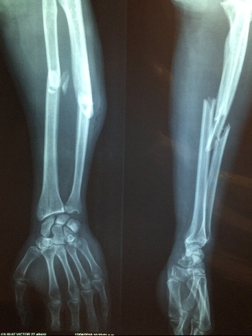 fracture-bone-2333164_1920.jpg